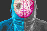 نکته بهداشتی: عوامل خطرساز سکته مغزی