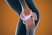 آرتروز شایعترین بیماری مفاصل | افراد بالای ۵۰ سال مراقب باشند