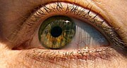 """علائم و خطرات """"سکته چشمی"""""""