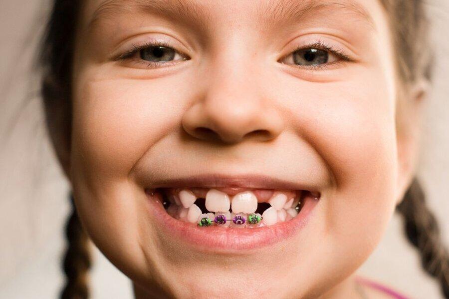 dental brace