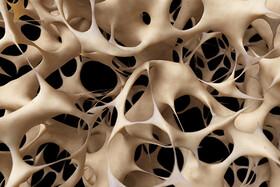 اطلاعنگاشت | آیا در معرض خطر پوکی استخوان هستید؟