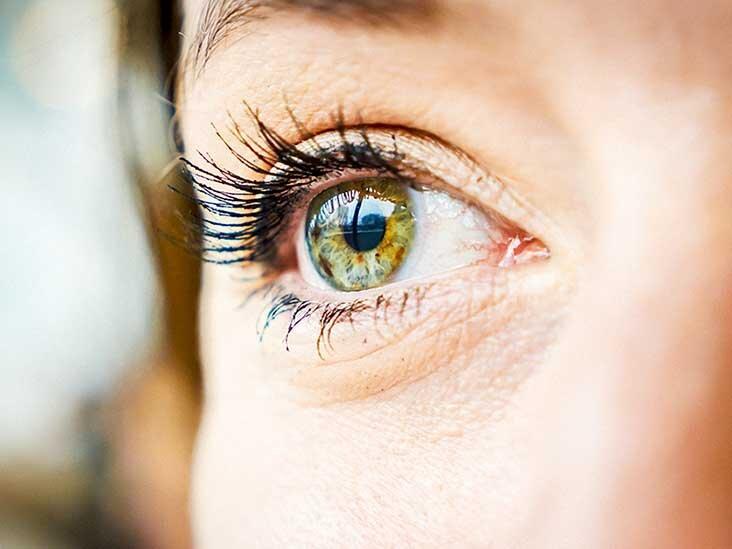 Eye Gunk