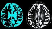نخستین داروی جلوگیریکننده از پیشرفت آلزایمر وارد بازار میشود