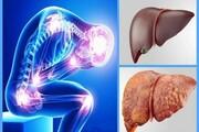 ابتلای ٣٠ درصد ایرانیها | علائم کبد چرب تا ۳۰ سال همراه بیمار میماند