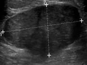 نکته بهداشتی: تودههای خوشخیم پستانی