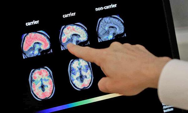 اسكن مغز بيمار آلزايمري