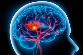 آلودگی هوا چگونه سبب سکته مغزی میشود؟
