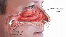 نکته بهداشتی: درمان ترشح پشت حلق از بینی