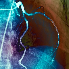 نتایج یک بررسی جدید: در بسیاری موارد بیماری قلبی استنت گذاشتن لازم نیست