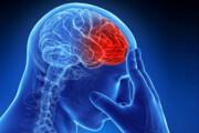 افزایش بروز سکته حاد مغزی در خراسان شمالی