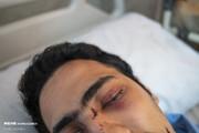 تصاویر | مجروحان حوادث اخیر تهران در بیمارستانها