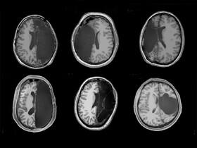 پس از برداشتن نصف مغز چه رخ میدهد | شش نفری که با نیمی از مغز زندگی میکنند
