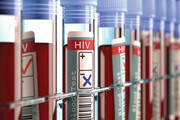 مهمترین عوامل ابتلا به ایدز چیست