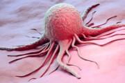 هشدار نسبت به رشد ۲ برابری سرطان روده بزرگ