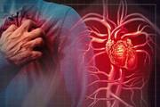 ۳۳۰۰ کرمانشاهی از سکته قلبی جان سالم به در بردند