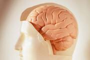 رفتار متفاوت شبکههای مغزی در افراد دارای میل خودکشی