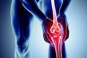 نکته بهداشتی: علل شایع درد زانو