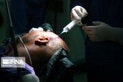 جزییات نخستین جراحی مغز در بیداری