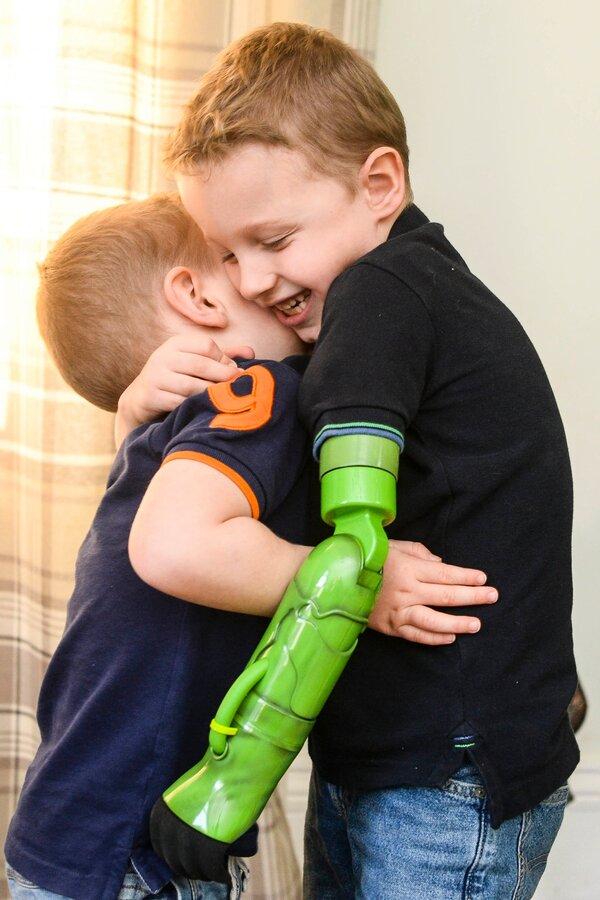 boy prosthetics 5 year old