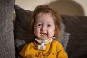 کودک ۲ سالهای که به سرعت پیر میشود | مورد عجیب بیماری «بنجامین باتن»