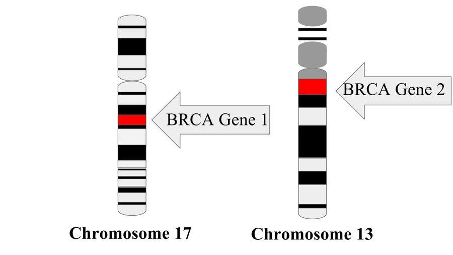 BRCA gene