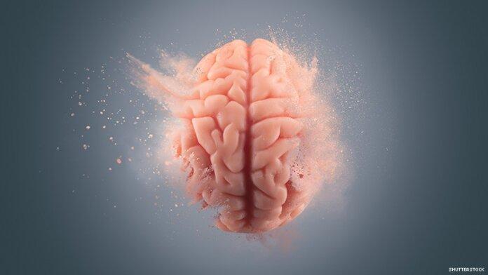 brain hiv