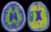 واکسن بثژ ممکن است خطر آلزایمر را کاهش دهد