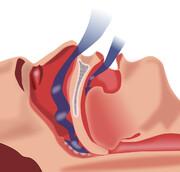 نکته بهداشتی | نشانههای وقفه تنفس در خواب