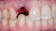 نکته بهداشتی | دندان کنده شده