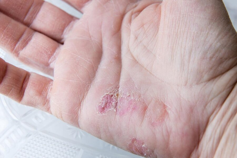 winter rash
