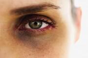 روشهای طبیعی برای بهبود حلقههای سیاه دور چشم