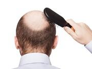 آیا درمان سریع ریزش مو امکانپذیر است؟