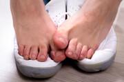نکته بهداشتی | جلوگیری از بوی بد پا