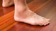 آشنایی با علائم بیماریها در پاهای شما