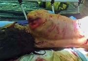 توضیح شهرداری درباره حمله سگهای ولگرد به یک دختربچه در پایتخت