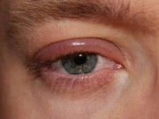 هشدار درباره شیوع عفونتهای ویروسی چشم در فصل سرد