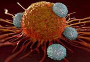 نکات کلیدی برای پیشگیری از سرطان