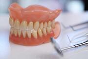 مسئول مربوطه: دندان مصنوعی گران است اما نه ۲۰ میلیون تومان