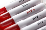 دردسر تازه کرونا برای کشورهای فقیر؛ قربانیان HIV، مالاریا و سل هم زیاد میشوند