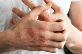 اگزما و مشکلات پوستی را جدی بگیرید
