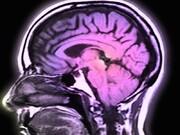 ویروس کرونا ممکن است عارضه مغزی هم ایجاد کند