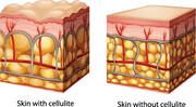 سلولیت؛ بیماری کارمندی | با این روشها سلولیت را از بین ببرید
