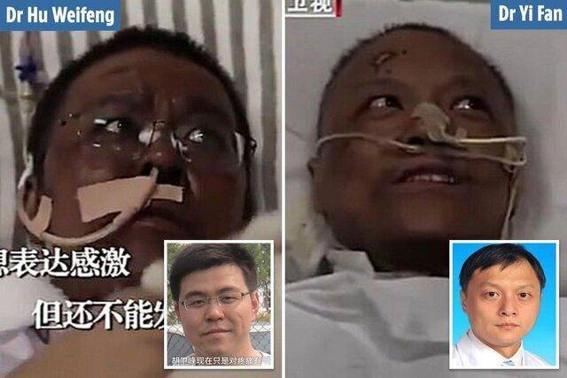 عکس | شگفتی جدید کرونا؛ پوست ۲ پزشک مبتلا به کرونا سیاه شد