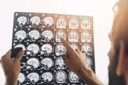 کدامیک از استانهای رکورددار سکته مغزی هستند؟ | نقش کرونا در سکتههای مغزی