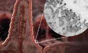 کووید-۱۹ میتواند به اندامهای گوارشی آسیب بزند