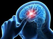 سکته مغزی میتواند یکی از عوارض بیماری کرونا باشد