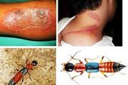 حمله دراکولا به اندیکا | «پادروس» حشرهای با نقاب مورچه