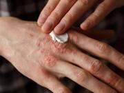 پسوریازیس؛ عارضه پوستی غیرقابل درمان و ارتباط آن با بیماریهای مفصلی