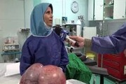 خارج کردن توده ۱۱ کیلوگرمی از بدن خانم ۱۸ ساله