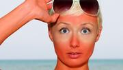 درباره آفتابسوختگی، آفتابزدگی و حساسیت به آفتاب
